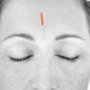 acupuncture for fertility header