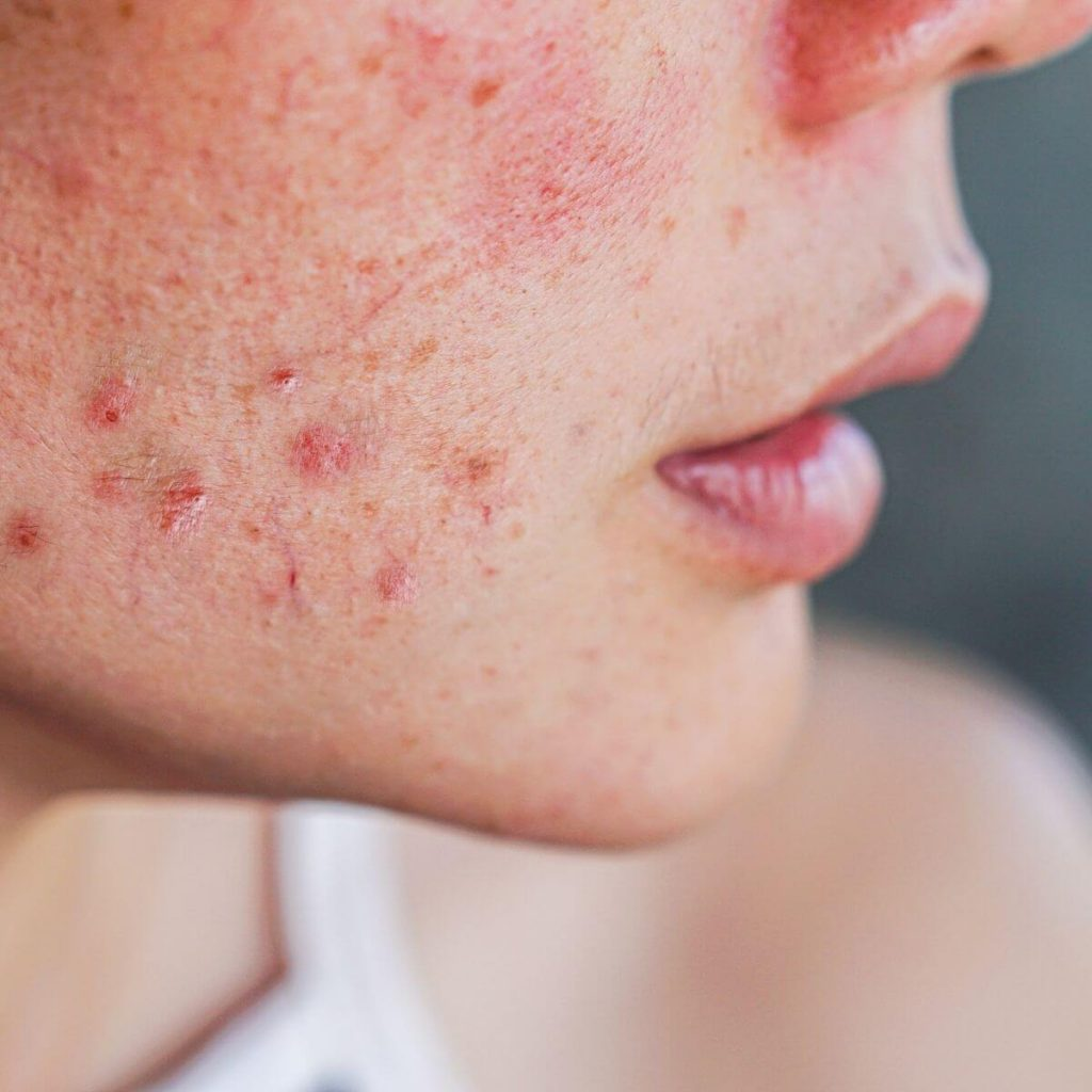 Pregnancy Acne Treatment - Close up of face with acne